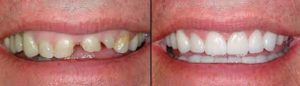 cosmetic dentistry sunset utah